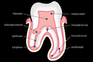 MTA ANGELUS® - Ilustração Dente - Indicações - POR